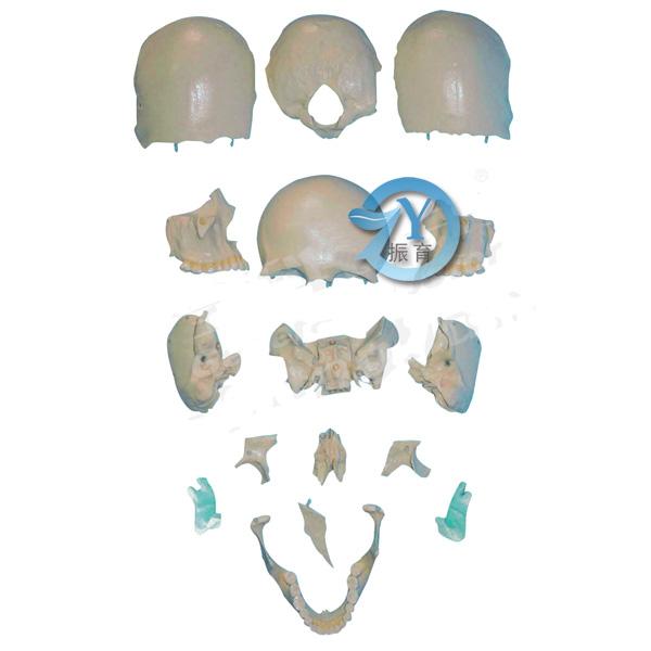 显示脑颅骨和面颅骨的形态结构